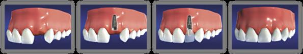 Dental Implants In Albuquerque